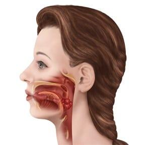 obstructive_apnea2